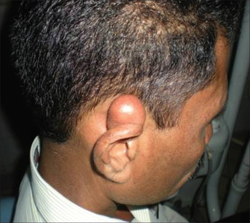 Epidermoid Cyst Of The Outer Ear A Case Report And Review Of
