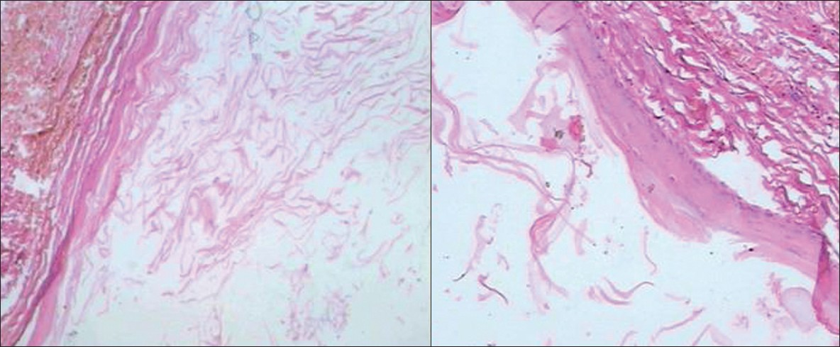 Epidermoid cyst of the outer ear: A case report and review