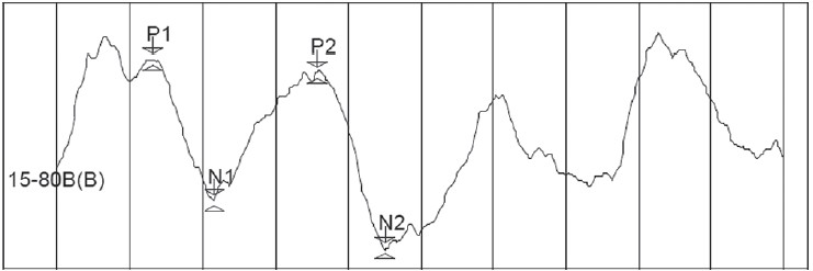 Figure 3: LLR Waveform of person with stuttering