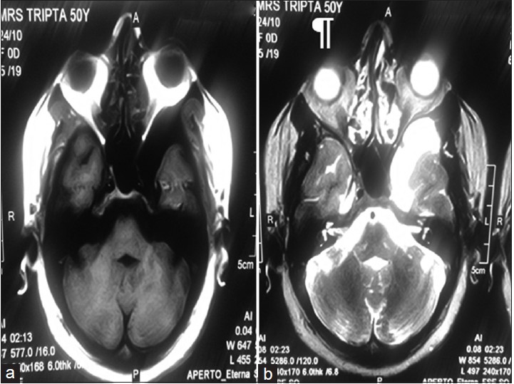 Incidental findings on magnetic resonance imaging in patients with ...