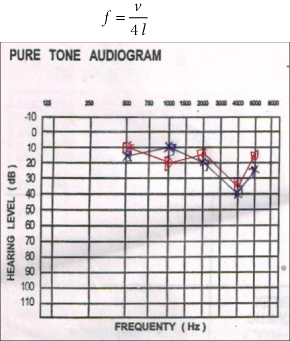 c07966b06bea Figure 1  Pure tone audiometry of worker showing early changes of  occupational hearing loss that is