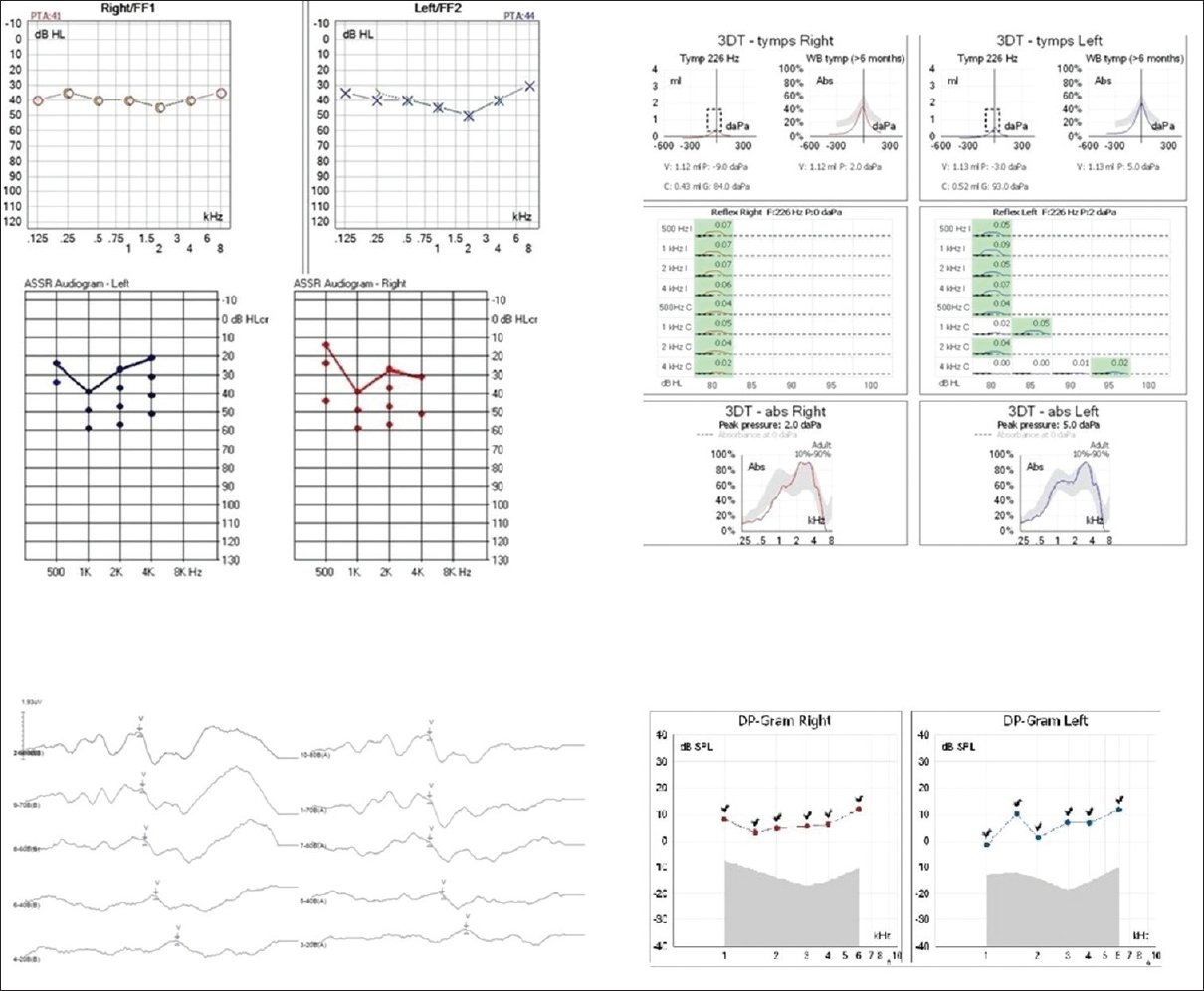 Figure 1: Puretone audiogram - medium sensorineural hearing loss; auditory steady state response - thresholds on 30–40 dB HL; auditory brainstem response - normal configurations and thresholds; Type A tympanogram; acoustic reflex present ipsi- and contralateral; distortion products otoacoustic emissions with responses on both ears.