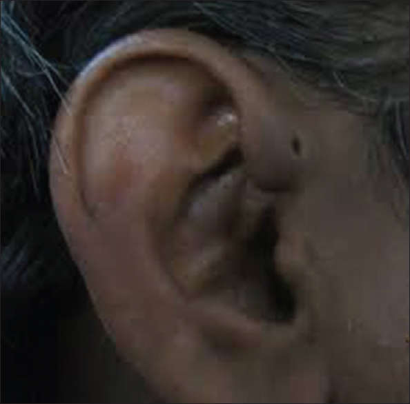 Surgical excision of preauricular sinus Sharma A, Taneja V, Mehra M