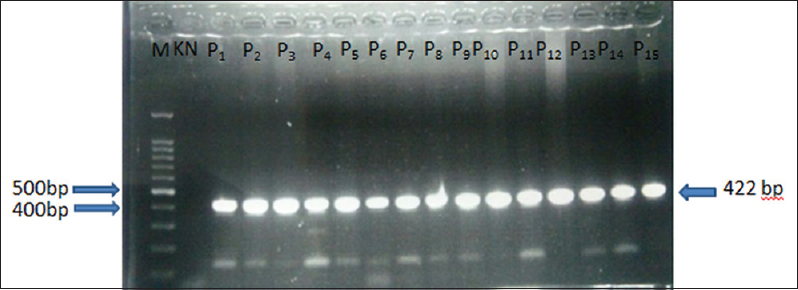 Figure 1: Examples of electrophoresis results of some polymerase chain reaction products of gap junction protein beta-2 genes in the participants' research with positive results. M: Marker100 bp, KN: Negative control, P1-P15: Sample