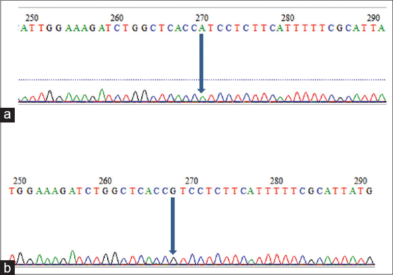 Figure 2: (a) Allele A mutant type, in the research participants number 3, 4, and 5, there was a nucleotide substitution G to A. (b) Allele G wild type, partial example of sequence location fragments around the gap junction protein beta-2 gene variation in nucleotide number 8473 in the study participants