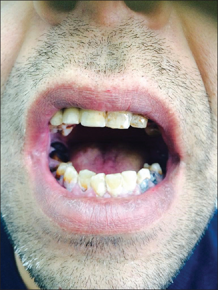 Figure 5: Discoloration of the gum and teeth