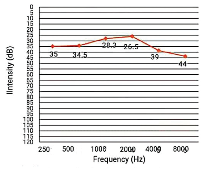 Figure 2: Average hearing threshold at each frequency