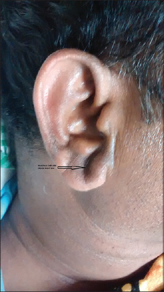 Figure 1: Diagonal earlobe crease right ear (Black arrow)