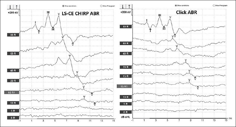 Figure 1: Example of ABR waveforms at suprathreshold to thresholds for auditory brainstem response elicited from both level specific CE-Chirp® and click stimuli