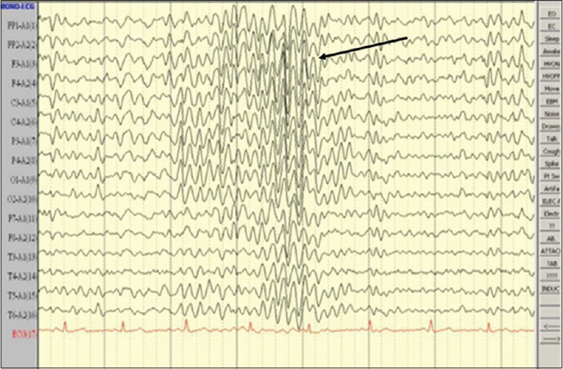 Figure 2: Electroencephalogram in patient 3 showing frequent paroxysmal bursts of sharp/spike and slow-wave discharges seen bilaterally and synchronously, with predominance to both the frontal regions (black arrow)